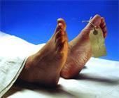 dead foot